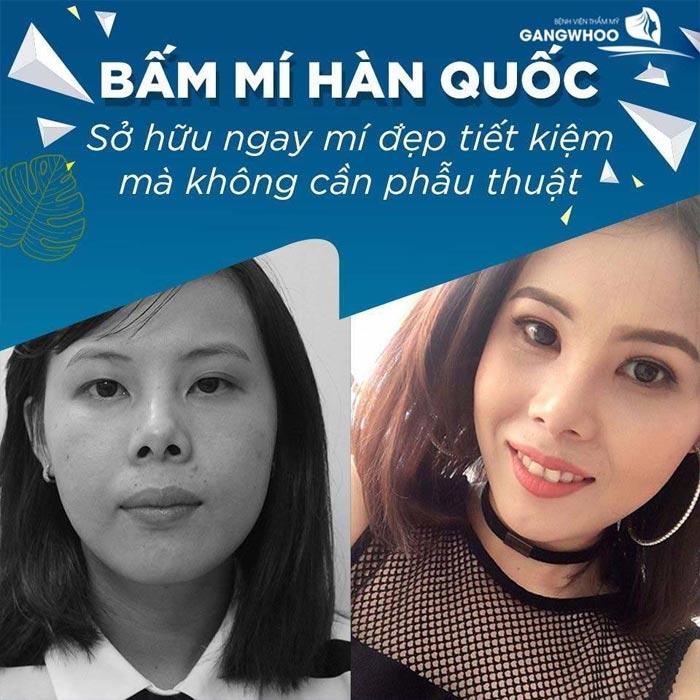 KH bam mi Han Quoc 1