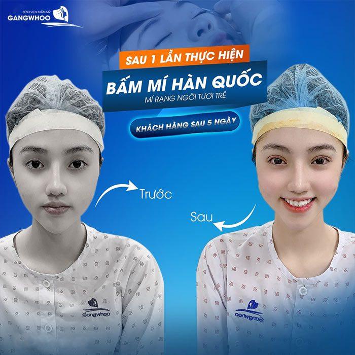 Korean non-incisional blepharoplasty for improving fates