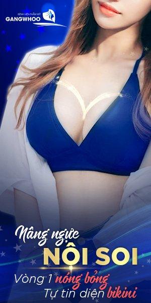 Khuyến mãi nâng ngực nội soi