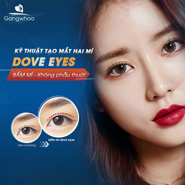 Bấm Mí Dove Eyes - Sở hữu ngay mắt bồ câu