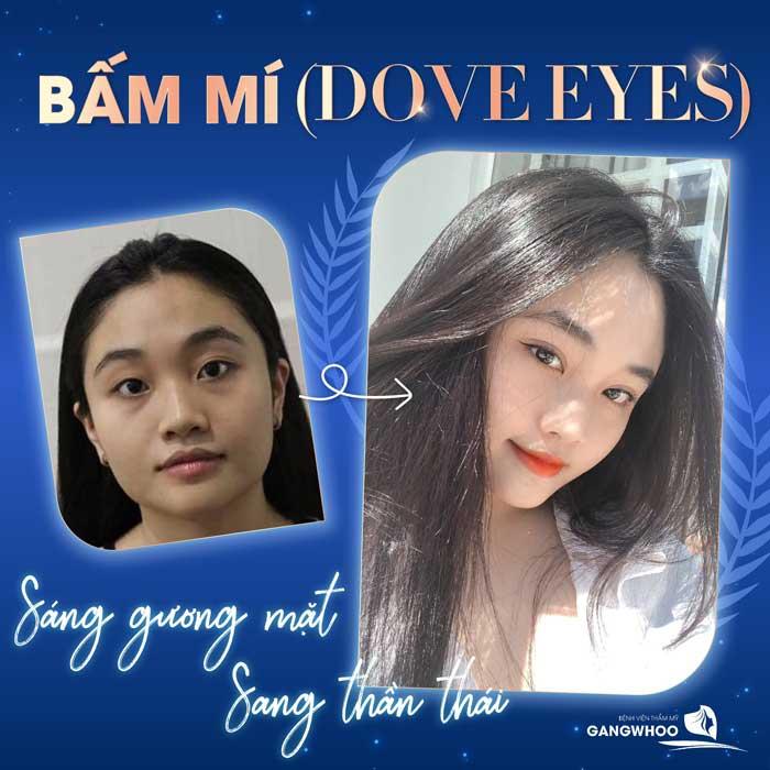 bam mi dove eyes 7