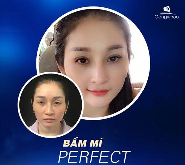 Bấm Mí Perfect mang lại phong thái tự tin
