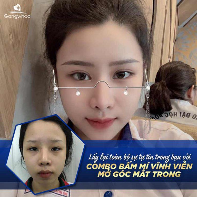 Bấm Mí Vĩnh Viễn Mang Lại Phong Thái Tự Tin
