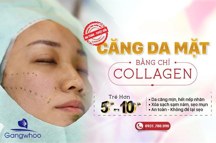Căng Da Mặt Bằng Chỉ Sinh Học - Chỉ Collagen
