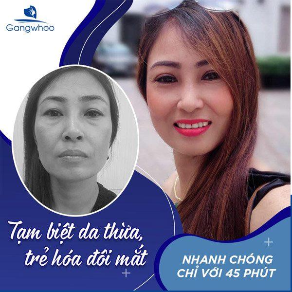 Cắt Da Thừa Mí Trên Mang Lại Phong Thái Tự Tin