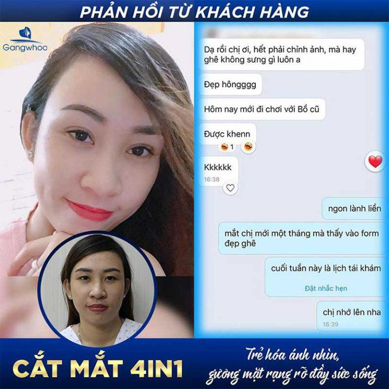 Bảng Giá Cắt Mí Bấm Mí Vừa Rẻ Vừa Chất Lượng