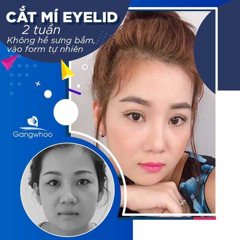 Khách hàng cắt mí Eyelid tại bệnh viện thẩm mỹ Gangwhoo