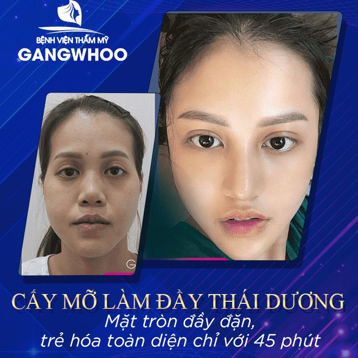 cay mo lam day thai duong min
