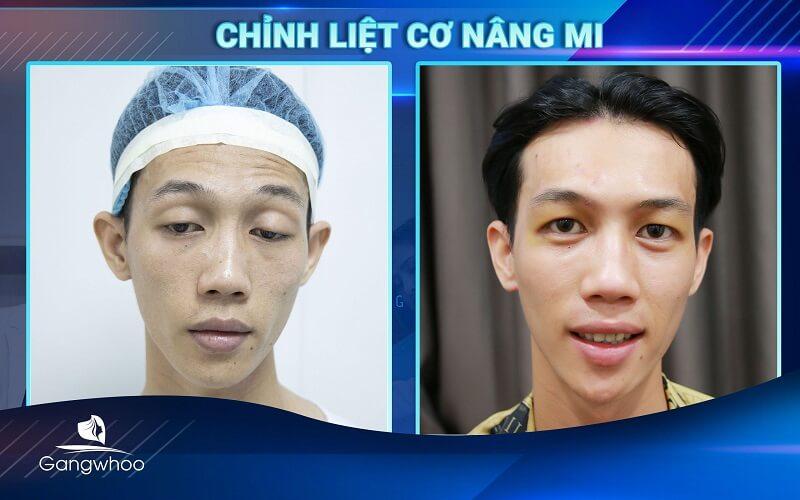 chinh sup mi bam sinh bvtm gangwhoo 4