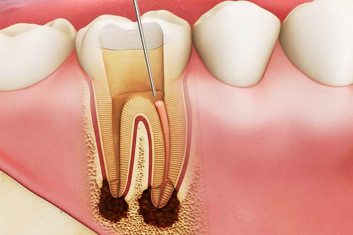 dịch vụ xử lý tủy răng