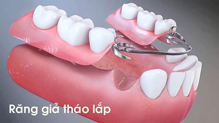 Dịch vụ răng giả tháo lắp