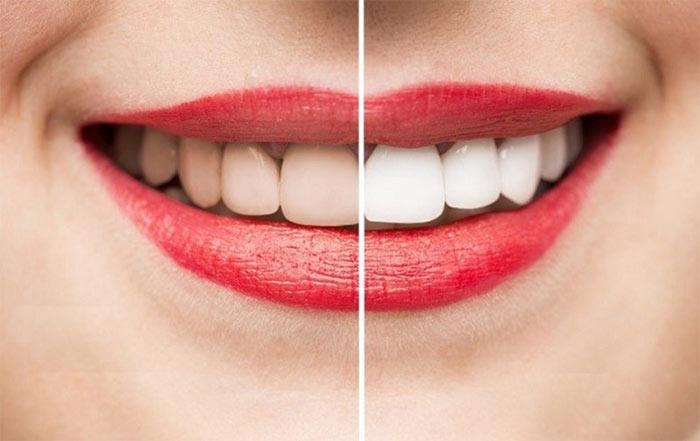 Dịch vụ tẩy trắng răng