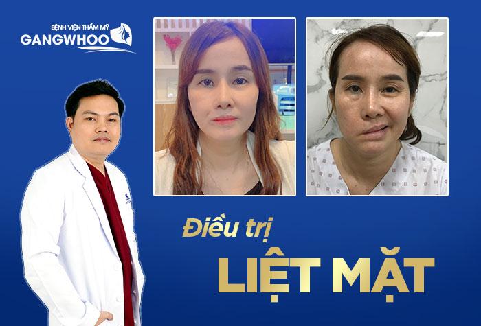 Ai là bác sĩ Điều trị liệt mặt giỏi nhất