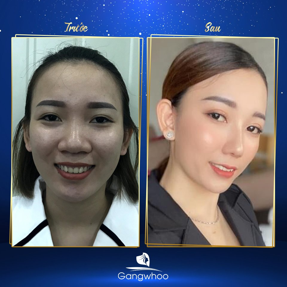 Images of our customers before & after Nose Tip Reduction
