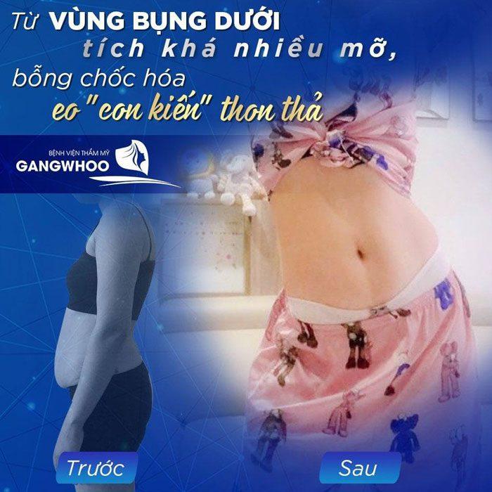 giam mo bvtm gangwhoo 1