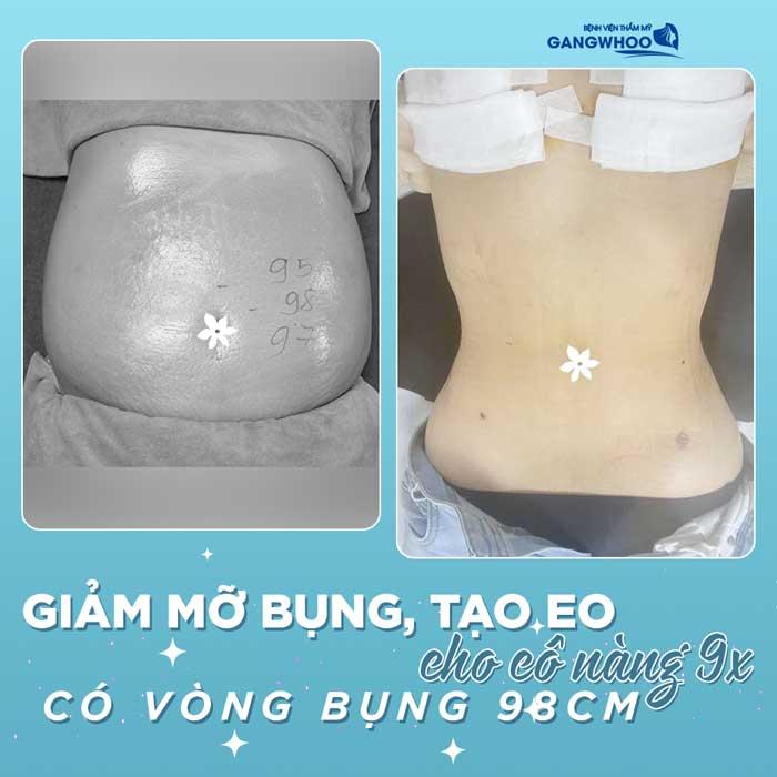 Complete Waist Liposuction