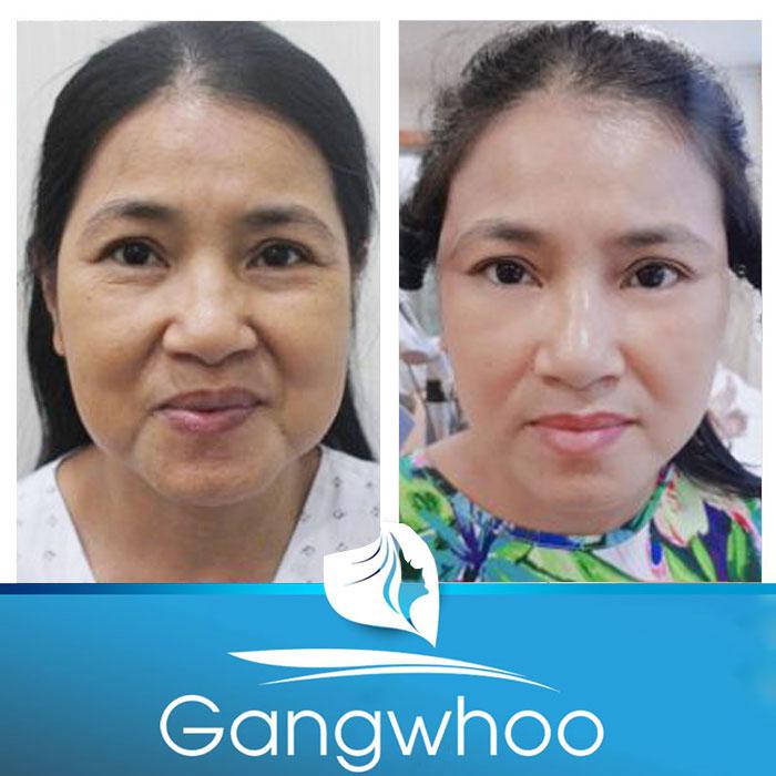 Hình ảnh khách hàng trước và sau khi căng da mặt