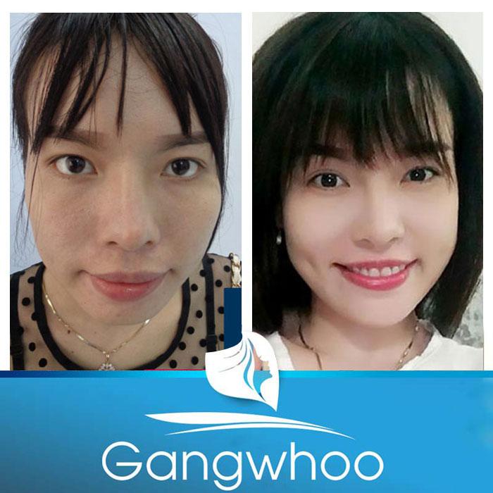 Hình ảnh khách hàng trước và sau độn cằm Korea Implant