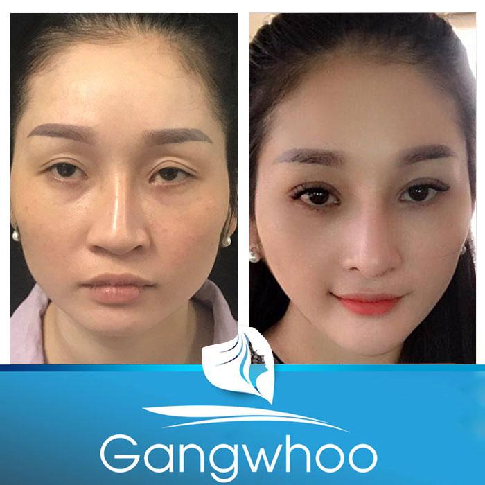 Hình ảnh khách hàng trước và sau khi hút mỡ