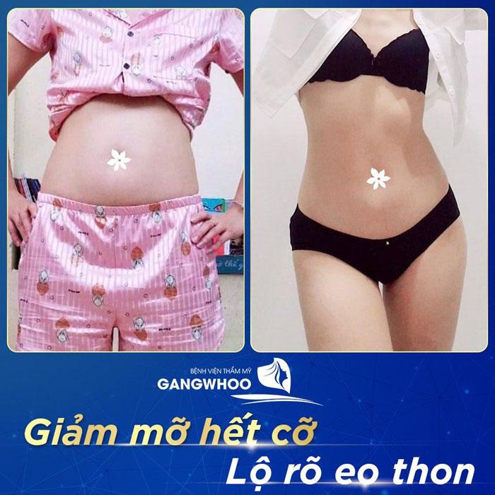 Hình ảnh khách hàng trước và sau giảm mỡ, giảm béo