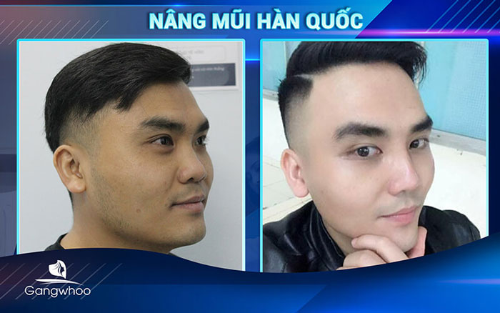 Images of our customers before & after Korean rhinoplasty
