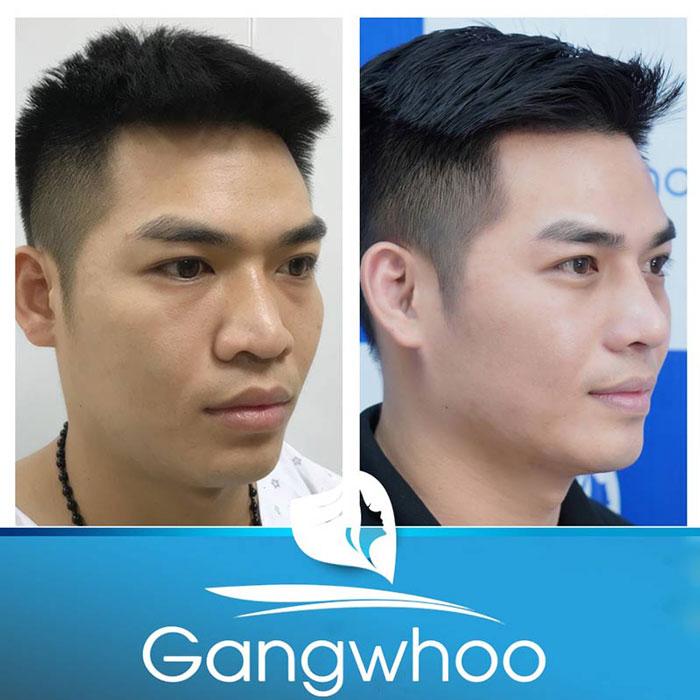Hình ảnh khách hàng trước và sau nâng mũi Perfect
