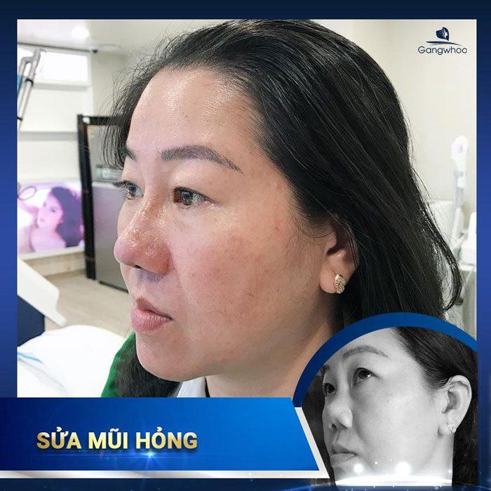 Hình ảnh khách hàng sửa mũi hỏng tại bệnh viện thẩm mỹ Gangwhoo