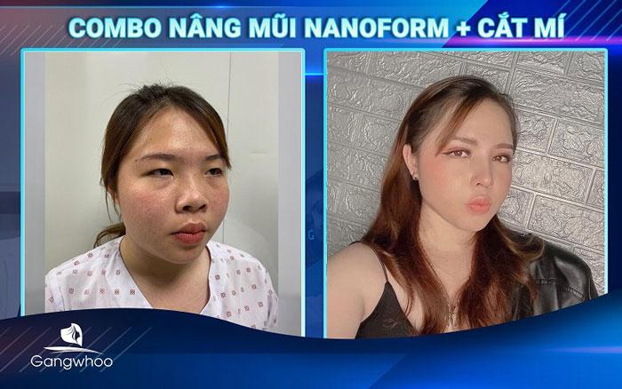 Hình ảnh khách hàng trước và sau khi nâng mũi siêu cao