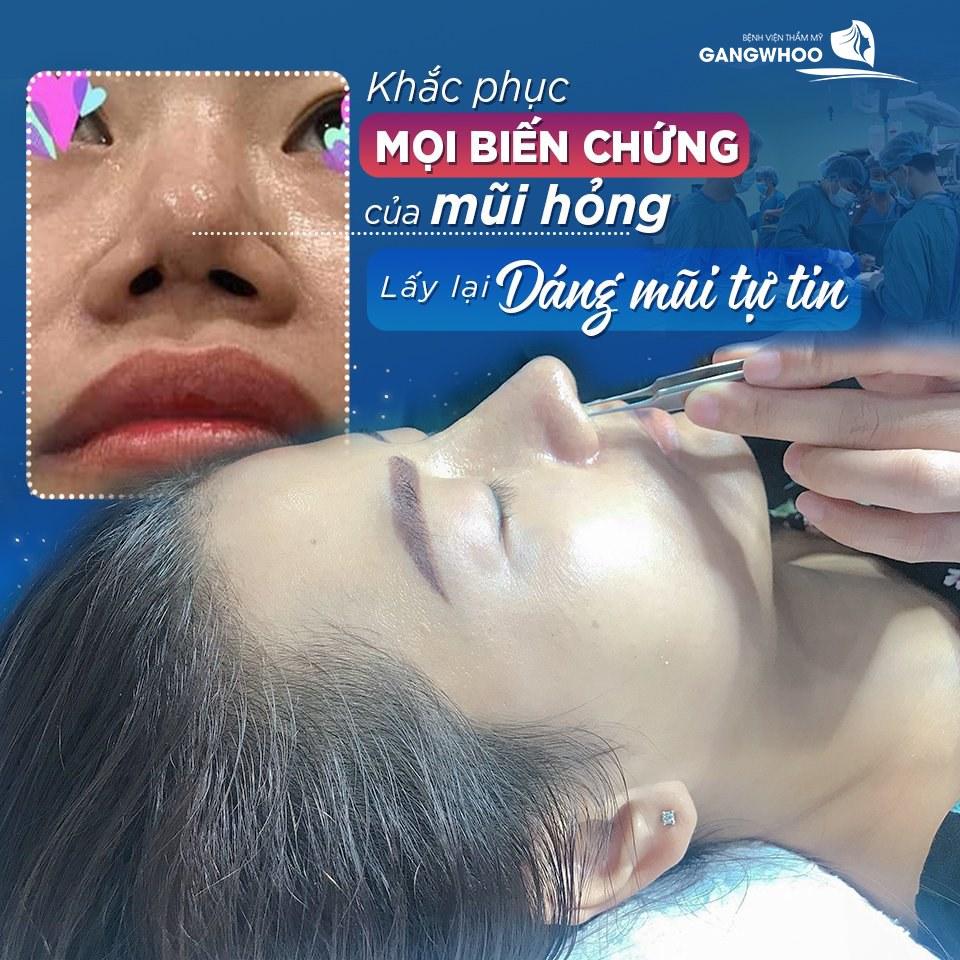khac phuc mui hong