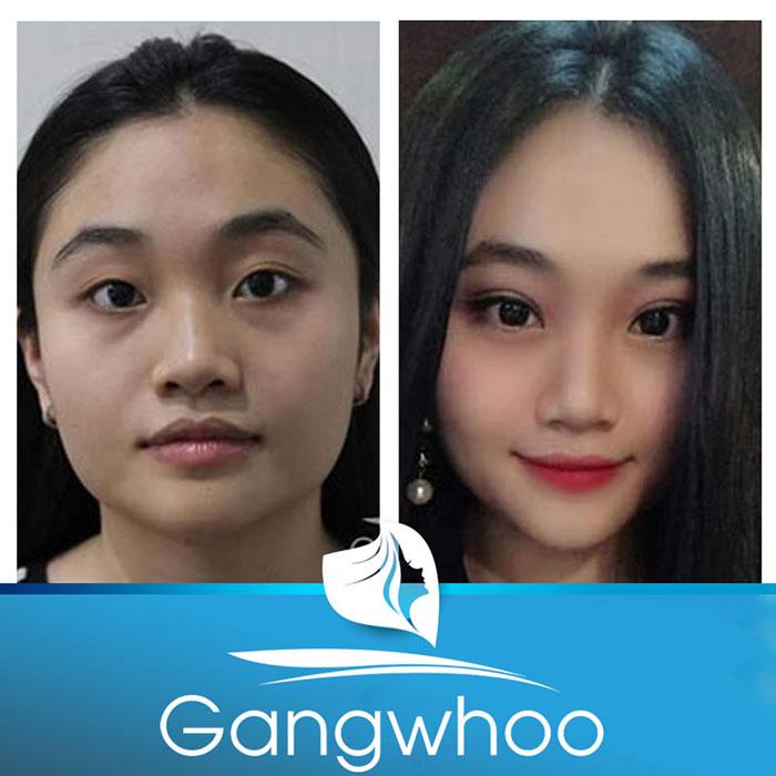 Hình ảnh khách hàng trước và sau bấm mí Hàn Quốc