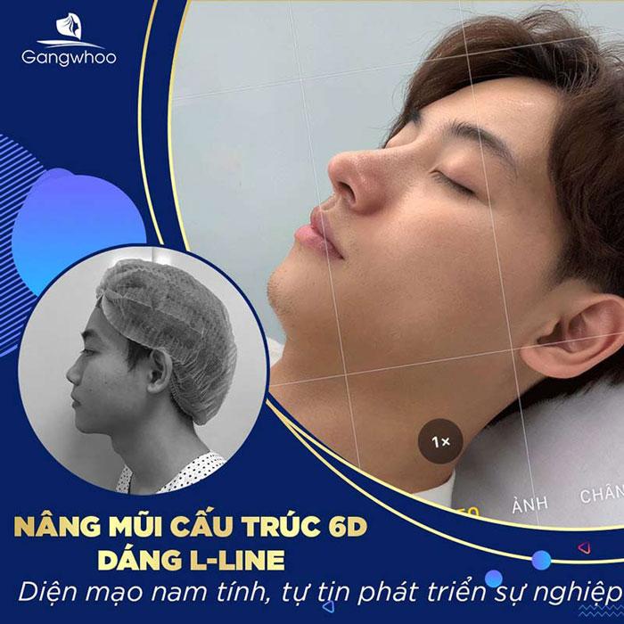 Khách hàng nâng mũi cấu trúc tại bệnh viện thẩm mỹ Gangwhoo