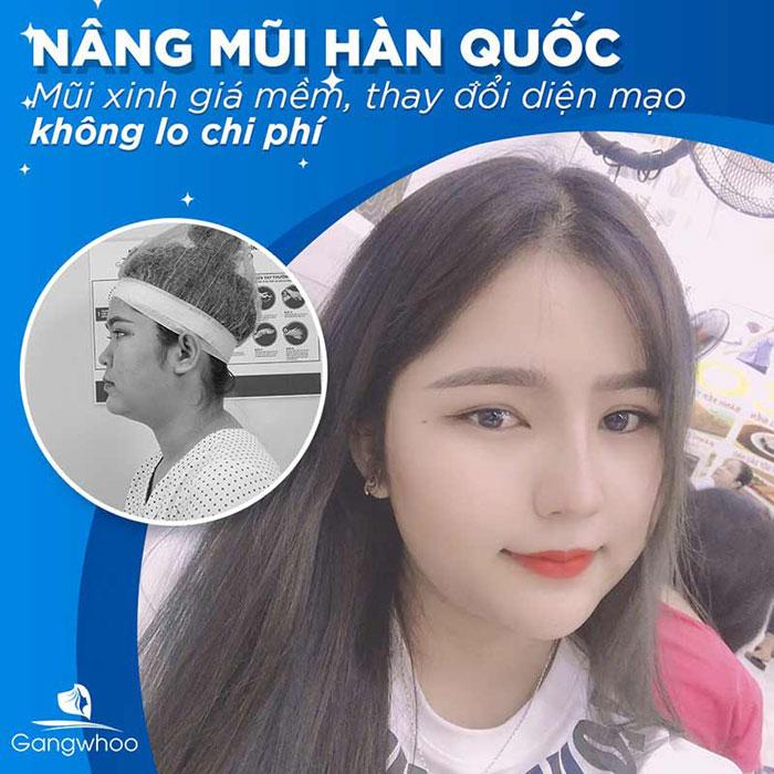 Khách hàng nâng mũi Hàn Quốc tại bệnh viện thẩm mỹ Gangwhoo