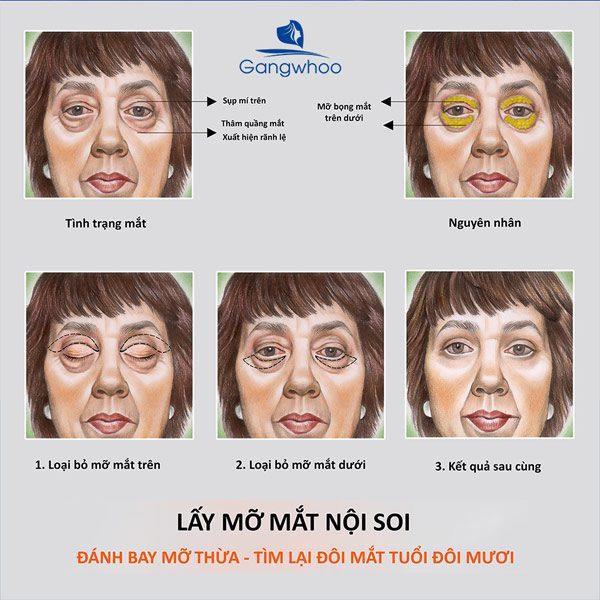 Lấy Mỡ Mắt Nội Soi Khiến Gương Mặt Rạng Ngời
