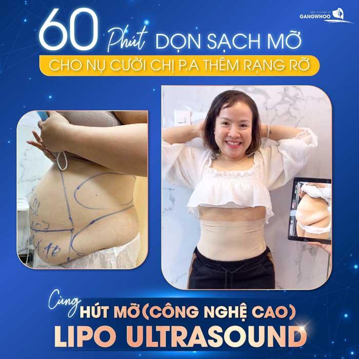 lipo ultrasound 3 1