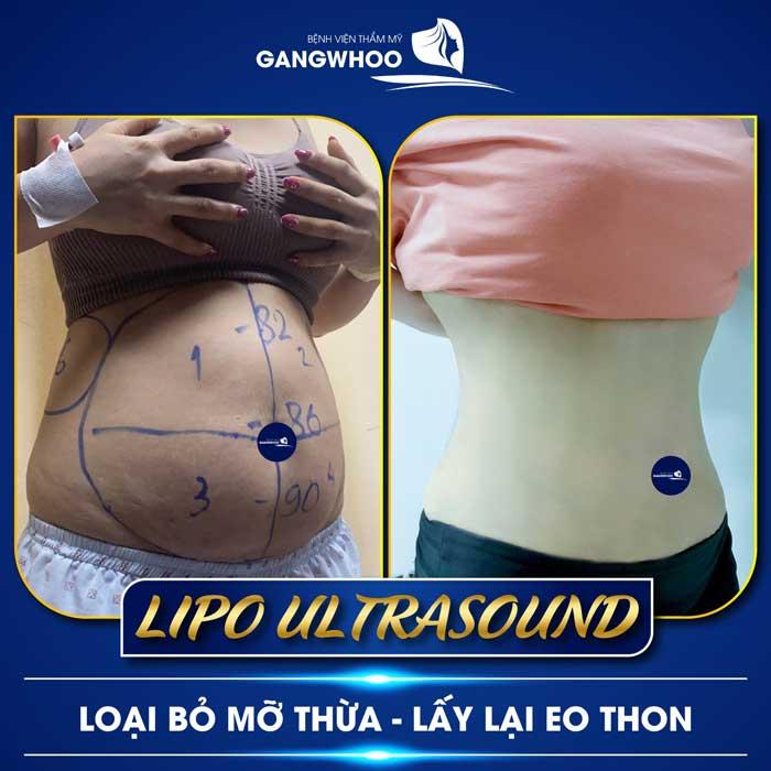 lipo ultrasound 8