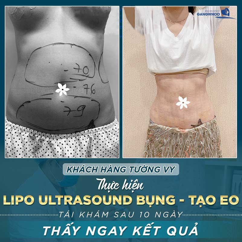 Khách hàng sử dụng công nghệ lipo ultrasound