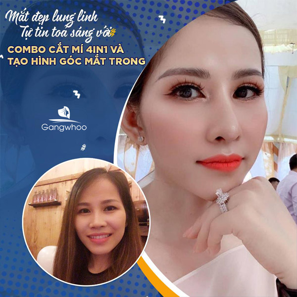 Tạo Hình Góc Mắt Trong Mang Lại Phong Thái tự Tin