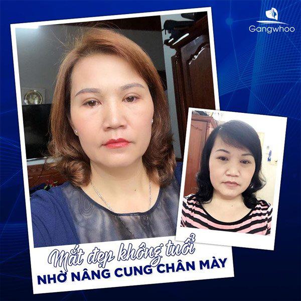 Nâng Cung Chân Mày Níu Giữ Thanh Xuân