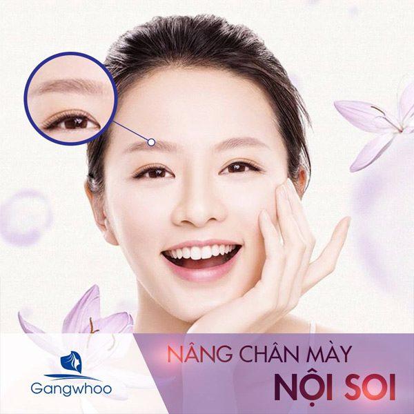 Nâng Cung Chân Mày - Mảnh Ghép Tái Sinh Thanh Xuân