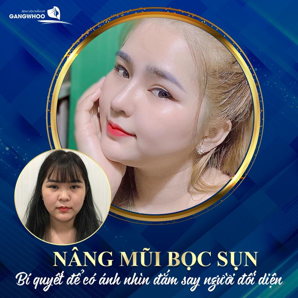 nang mui boc sun 1 2