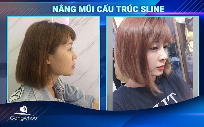 Hình ảnh khách hàng nâng mũi tại bệnh viện thẩm mỹ Gangwhoo