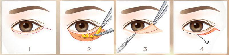 Quy trình cắt da thừa mí dưới và lấy mỡ mắt