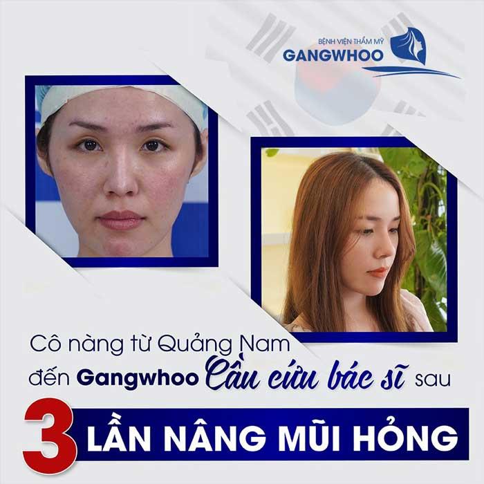 sửa mũi hỏng tại bệnh viện thẩm mỹ Gangwhoo