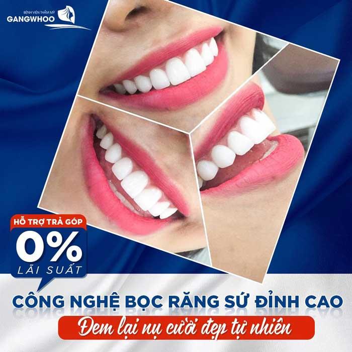 bọc răng sứ hỗ trợ trả góp tại bệnh viện thẩm mỹ Gangwhoo