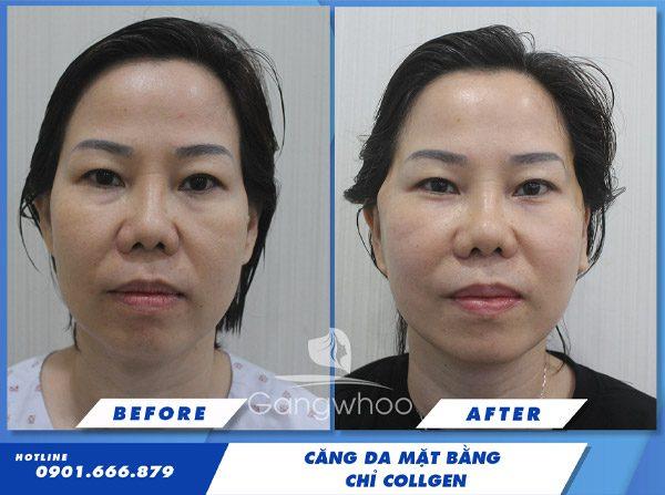 cang da mat bang chi sinh hoc 3
