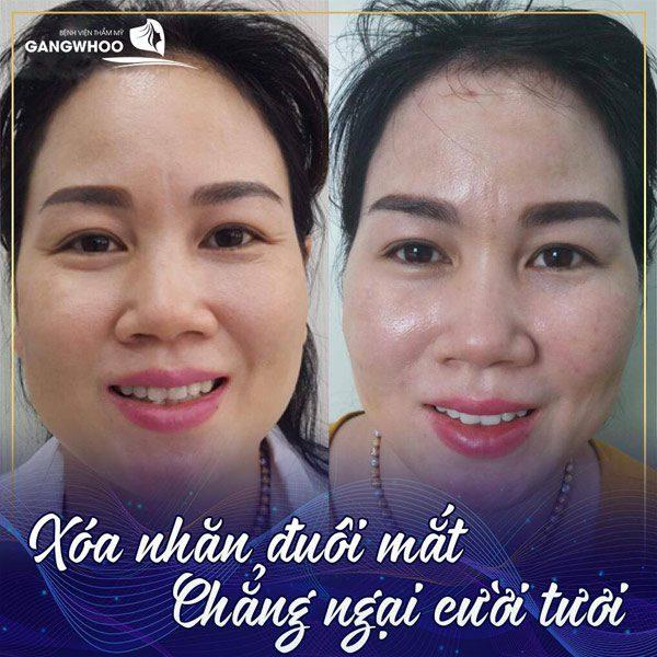 Căng Da Mặt Total Mang Lại Nụ Cười Mỹ Mãn