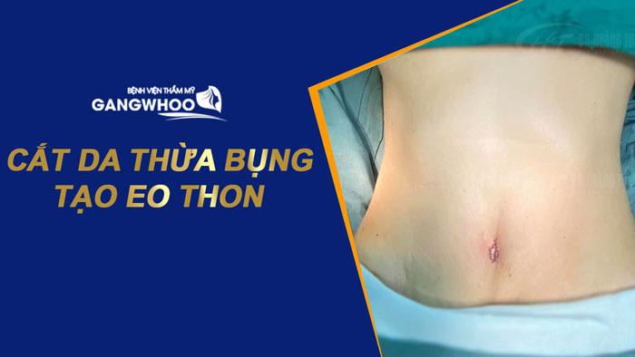 """Cắt Da Thừa Bụng Và Tạo Eo Thon Cho Dáng Thon Thả """"Nuột Nà"""""""