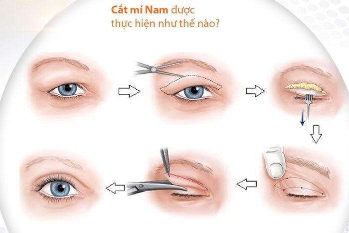 Cắt Mắt 2 Mí Có Để Lại Sẹo Không? Đâu Là Câu Trả Lời Thích Đáng