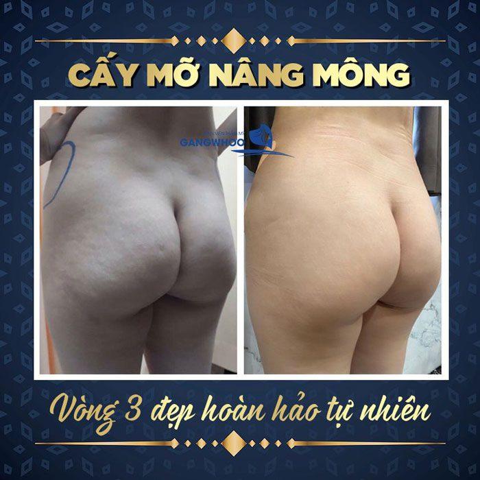 cay mo nang mong bvtm gangwhoo 1 1