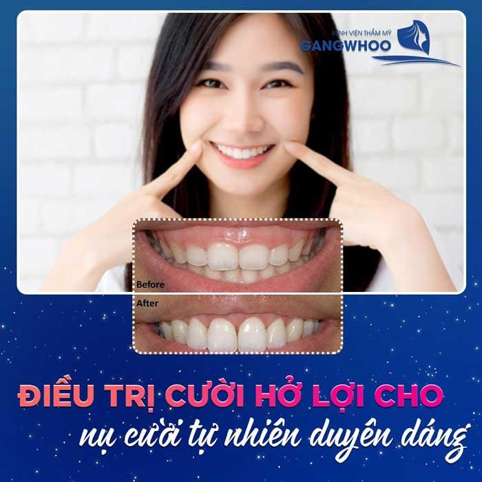 chinh cuoi ho loi bvtm gangwhoo 1